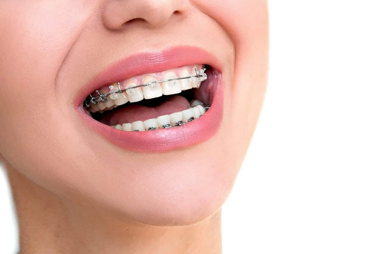 Orthodontic braces in Stony Plain